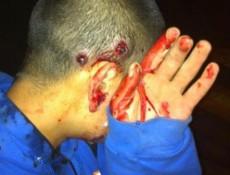 Joven de 17 años herido por perdigones